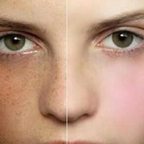 懷孕期遇上的皮膚問題‧改善有法
